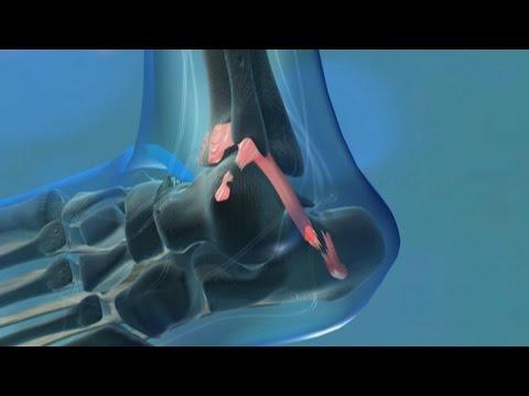 Ultraschall Hüftgelenke 1 Monat Baby