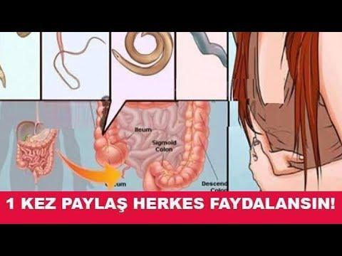 A parazita toxinok testének megtisztítása