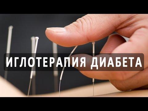 Insulina libre para los diabéticos Rusia