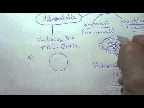 La hipertensión en Inglés