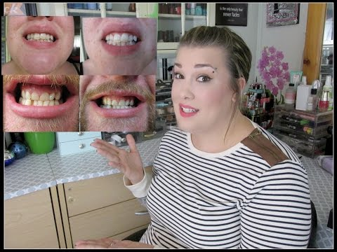 Get White Teeth The AFFORDABLE Way | Smile Brilliant