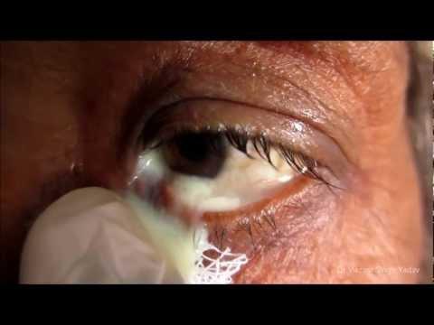 Retinol wrinkles sa paligid ng mga mata