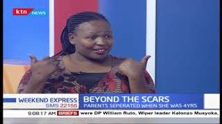 Beyond the scars: Njoki reveals that she was molested by her cousin