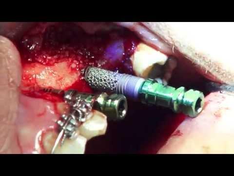 El coste de pecho implantov habarovsk