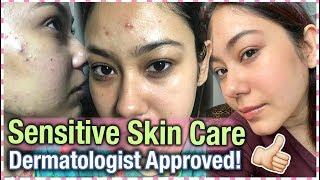 How I Cleared My Acne | DERMATOLOGIST APPROVED | Sensitive Acne Prone Skincare | ThatQuirkyMiss