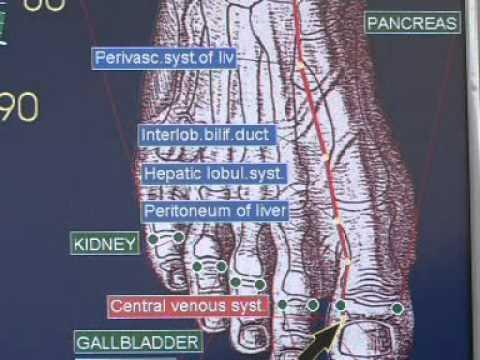 Žemės riešutai ir hipertenzija