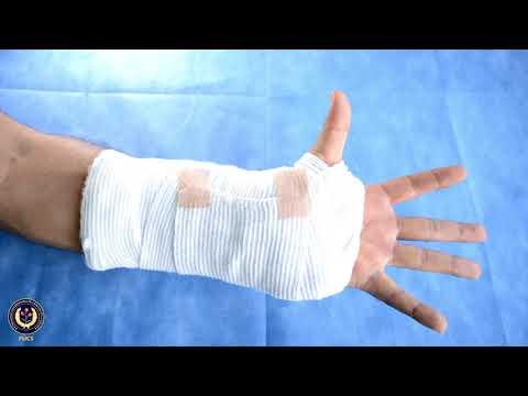 Articulația rottweiler doare