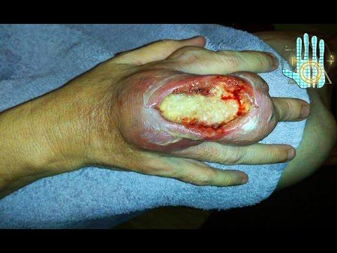 Los parásitos en el organismo de la persona en kale