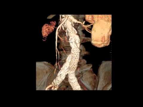 Ci sono state vene che stanno varicosity