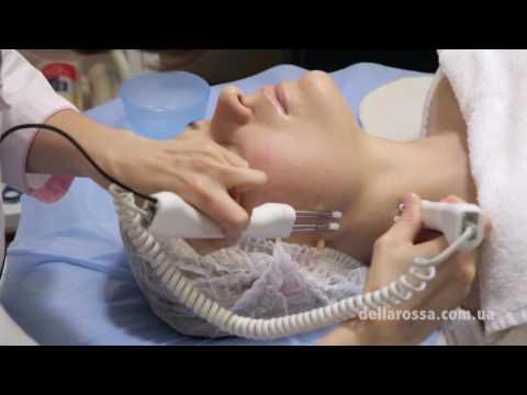 Лазерная косметология лица в чебоксарах