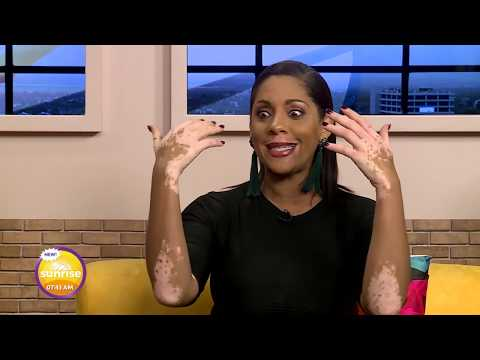 CVM At Sunrise - Vitiligo Awareness -  February 18, 2019