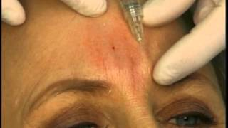 Dr. Elliott Shows How To Fill Frown (Glabella) Lines With Juvederm