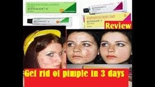 Betnovate Cream Review In Tamil || Uses || Side Effects||get Rid Of Pimples In 3 Days
