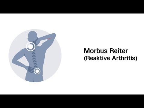 Behandlung von Osteoarthritis Diplom