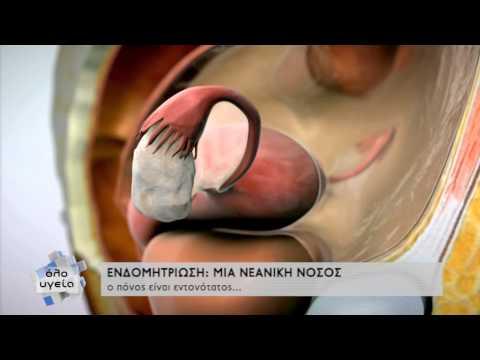 Διαφορές από φυματίνης σύριγγα ινσουλίνης