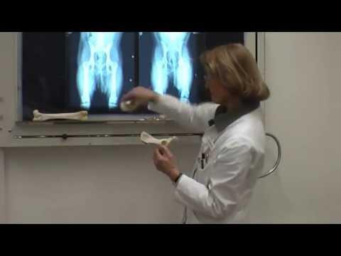 Röntgenstrahlen der Brustwirbelsäule stehend