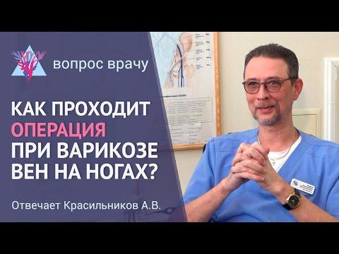 Как делают операцию при варикозе вен на ногах