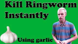 Kill Ringworm Instantly (Using Garlic)