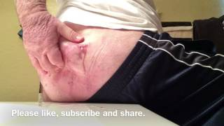 Hidradenitis Treatment. Pus, Blood, Boils,cyst