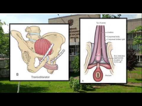 Prostatitisa manifestira kao akutna