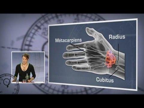 comment soulager une tendinite a la main
