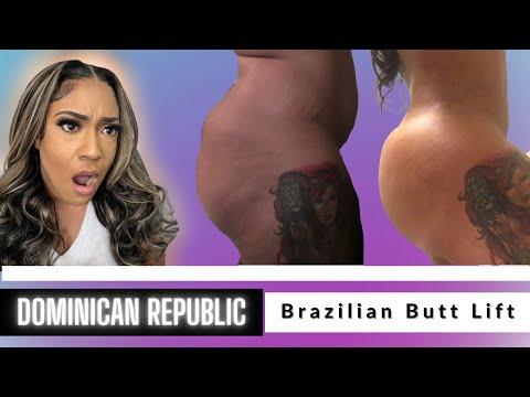 Weight Loss/Gain after Brazilian Butt Lift | Dr  Daniel