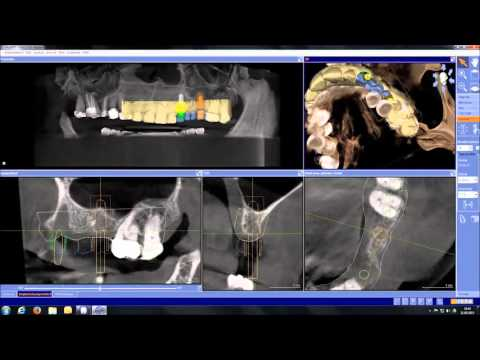 inLab SW 15 - CEREC Guide 2 Workflow with GALILEOS