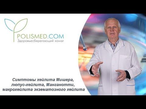Симптомы хейлита Мишера, люпус-хейлита, Манганотти, макрохейлита экзематозного хейлита