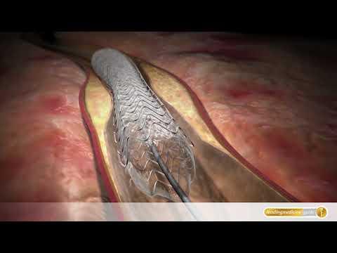 Neuralgie oder thorakale Wirbelsäule Osteochondrose