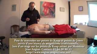 Poser Des Ventouses, école De Magnétisme, école Magnétiseur, Cours De Magnétisme&magnétiseur