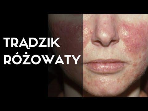 Atopowe zapalenie skóry Nowosybirsk