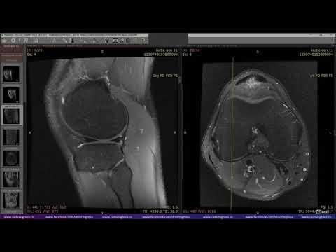 Durere în articulațiile picioarelor la mers