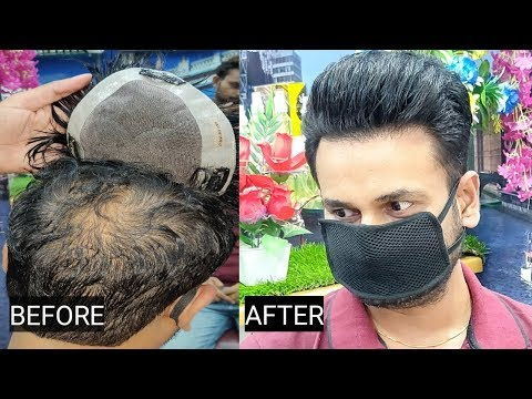 Clipping method hair patch system, by anas sheikh, call us📲 9650914665 whatsap also