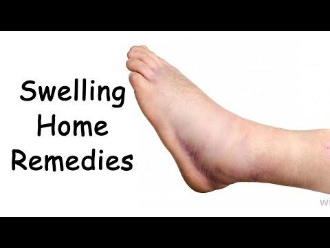 Video Edema Treatment With 3 Easy Natural Remedies By Sachin Goyal @ ekunji.com