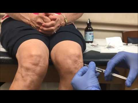 Artrita primului deget de la picior