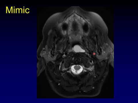 Paraziták mágneses diagnosztikája