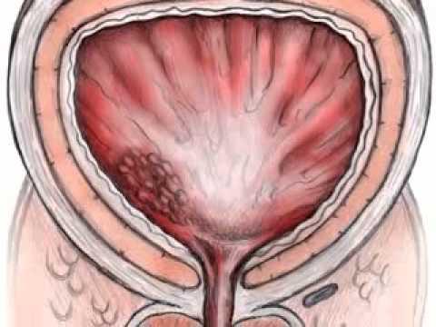 Liječenje prostatitisa MAVIT SFM-01