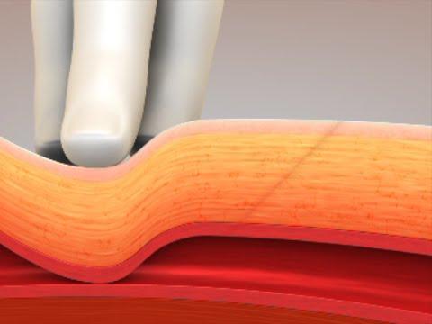Cardiva CATALYST® III Animation