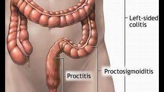 Treatment of Proctitis