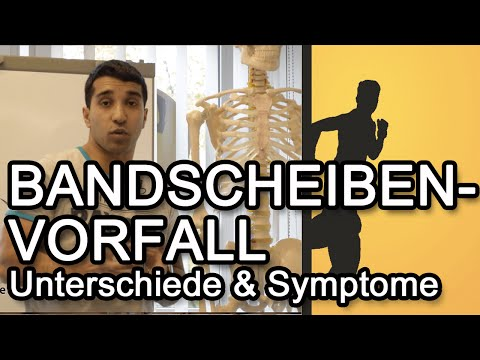Krankheiten Codes in ICD Osteochondrose