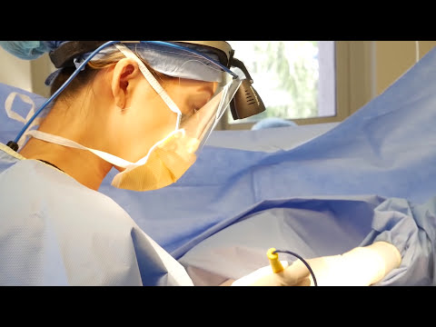 Breast Augmentation with Silicone Implants by Beverly Hills Female Plastic Surgeon, Dr. Cat Begovic