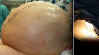 Doctors remove 132-pound tumor from woman's abdomen in Connecticut