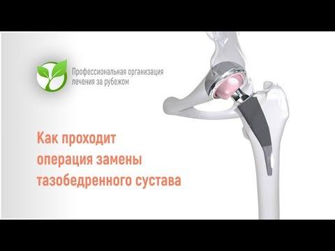 Как проходит операция замены тазобедренного сустава