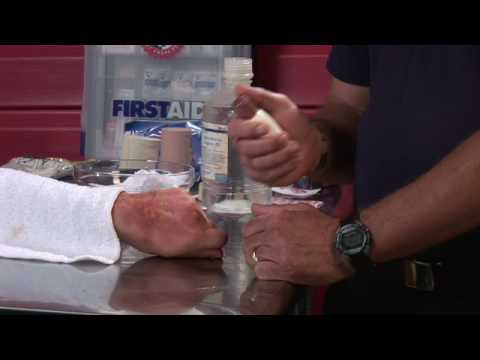 Video First Aid Tips : How to Treat Poison Oak, Ivy & Sumac