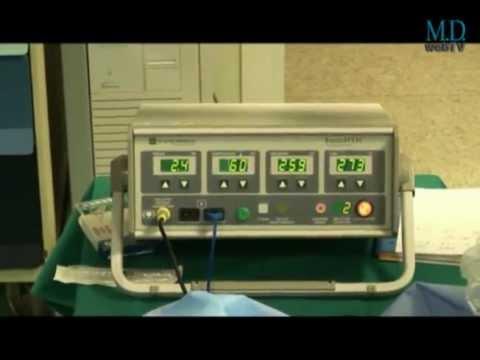 Nel rene e della pressione sanguigna pietra