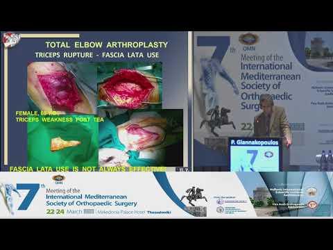 P Giannakopoulos - Total elbow arthroplasty