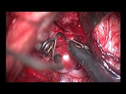 Klipsowanie tętniaka prawej tętnicy środkowej mózgu