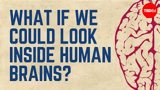 What if we could look inside human brains? – Moran Cerf