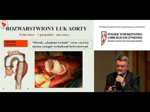 Tętniaki aorty piersiowej - leczyć razem czy osobno?