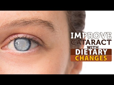 Improve Cataract With Dietary Changes | Healthfolks